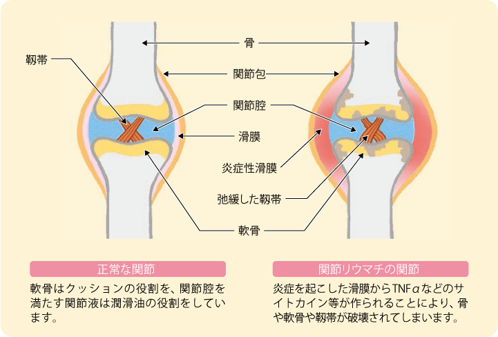 正常な関節では、軟骨はクッションの役割を、関節腔を満たす関節液は潤滑油の役割をしています。